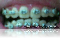 gigi (3)